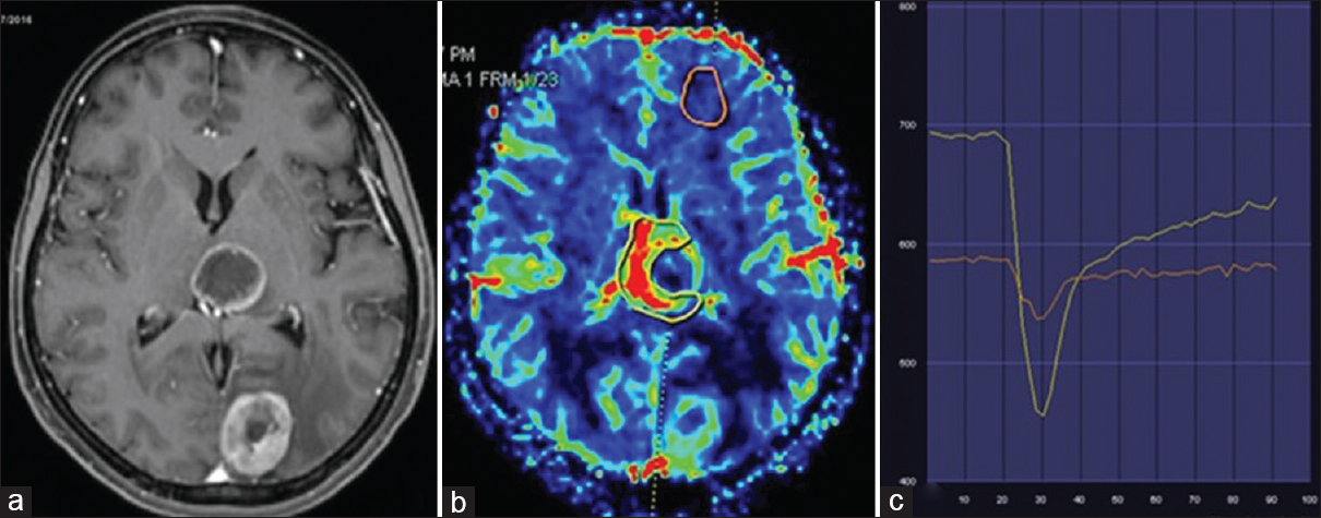Figure 2: Axial T1w post-contrast image showing enhancing lesions in the brain (a) which is a known case of cerebral metastases. Yellow ROI placed on the enhancing lesion on CBV perfusion map shows about 48% signal intensity recovery in the recovery map. Golden color perfusion curve represent base line signal recovery (b and c)