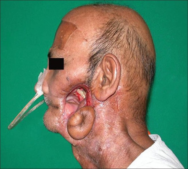 Figure 4 :Case 2: Orofacial communication due to omitted graft