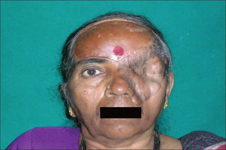 Figure 7 :Case 3: Orbital defect with skin graft placed