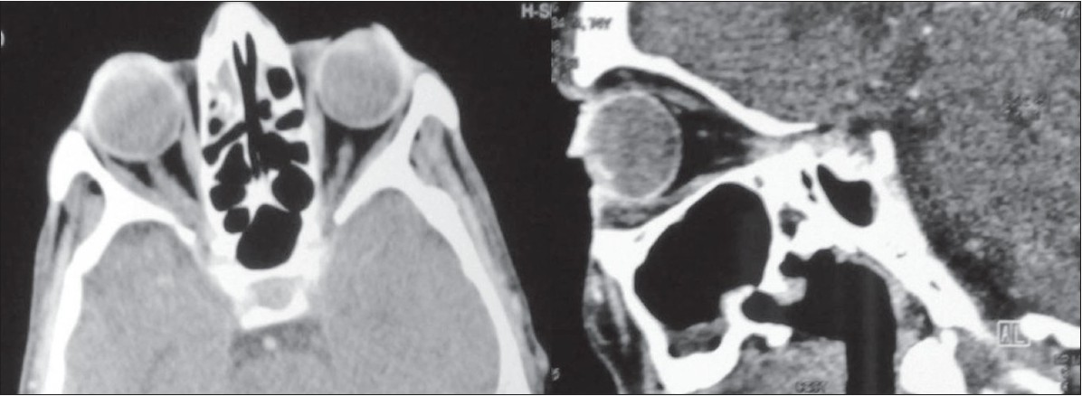 Figure 3 :Parasagittal and cross-sectional view through the right orbit six months after orchiectomy showing complete resolution of the retro-orbital soft tissue tumor