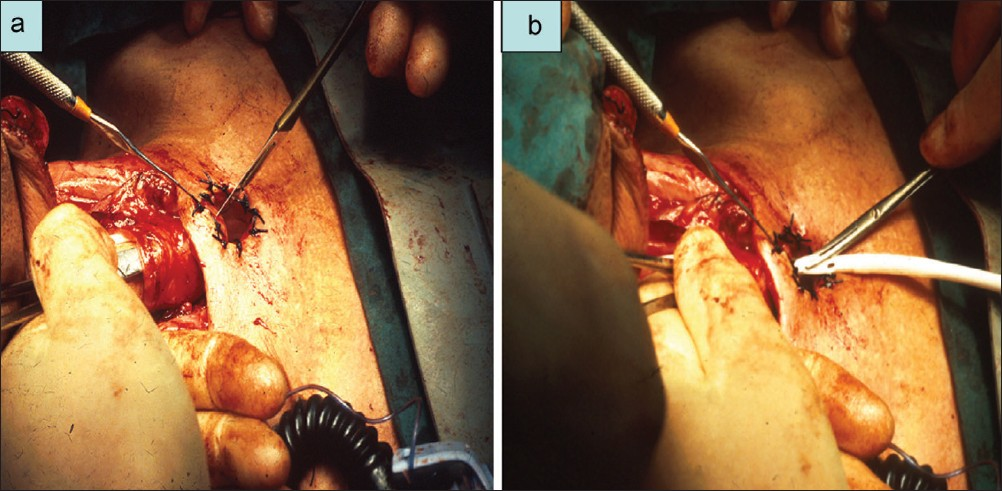 Figure 4 : (a) Technique of primary TE puncture; (b) Placement of Foley catheter in the primary TE puncture[28]