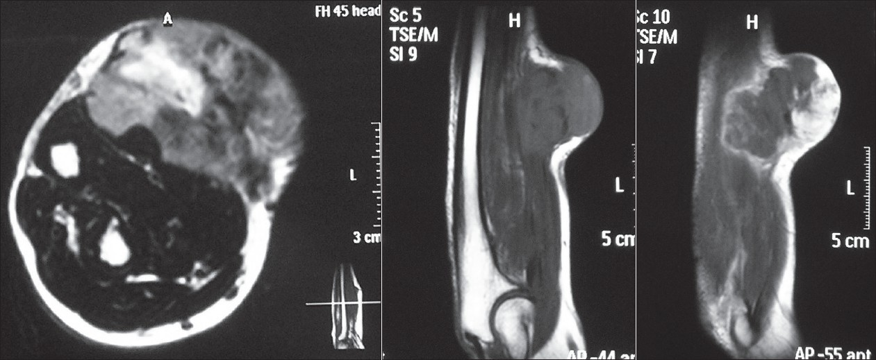 Figure 1 : a : Axial T2-weighted magnetic resonance (MR) image of the right forearm in an 84-year-old man who presented with swelling of approximately 04 months duration, reveals a dumbbell tumor with predominantly heterogenous signal intensity crossing the investing layer of fascia and forming an obtuse angle with it. The margins are irregular and it is seen to infi ltrate the underlying muscle. The lesion measures 6 × 5 cm approximately. The lesion was diagnosed as malignant fi brous histiocytoma on histopathology.