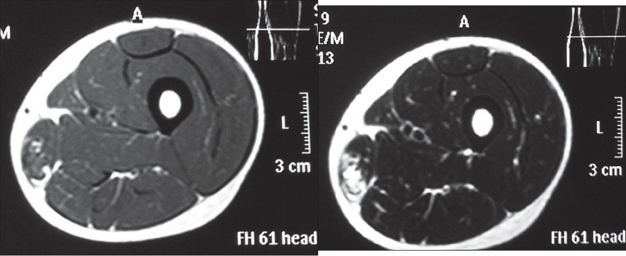 Figure 2 : a : Axial T1-weighted image of the left thigh in a 19-yearold man who presented with symptoms of approximately 1-year duration, reveals a well-defi ned lesion located within the Gracilis muscle. It shows heterogenous signal intensity with foci of hyper-, hypo-, and isointensity. Associated investing fascia is thickened. The lesion measures 2 × 1 cm approximately. 
