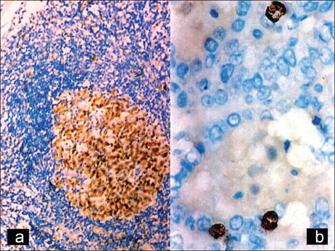 Figure 1: Positive control for Ki-67 lymph node (left half); a case of follicular carcinoma showing nuclear positivity for Ki-67 (�0)