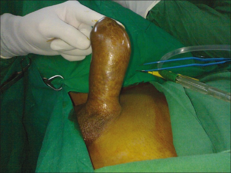 Penectomy Photos http://www.indianjcancer.com/article.asp?issn=0019-509X;year=2011;volume=48;issue=1;spage=111;epage=112;aulast=Nerli