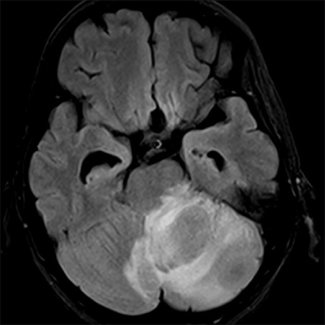 Figure 1: MRI showing a large left cerebellar lesion