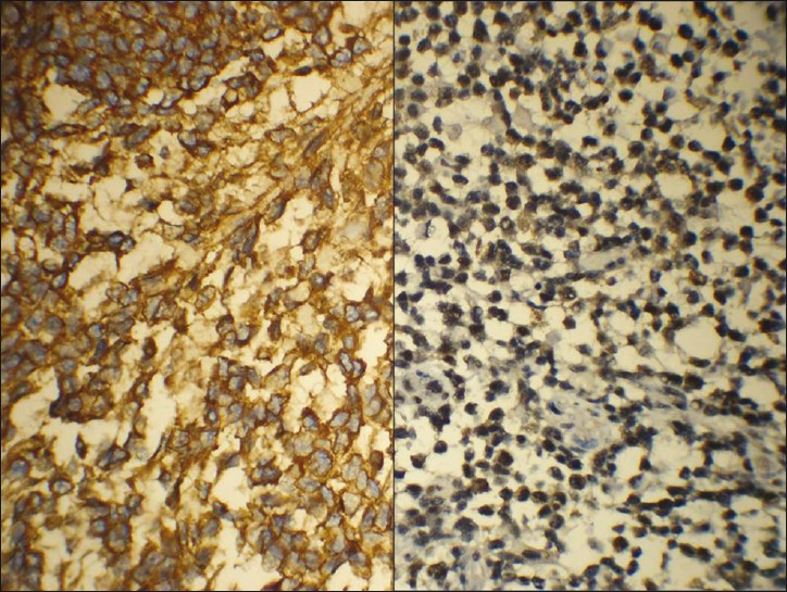 Figure 6: Tumor cells show a strong cytoplasmic positivity with the epidermal growth factor receptor and strong nuclear positivity with p53 favoring gliosarcoma (Right : EGFR ; Left : p53)