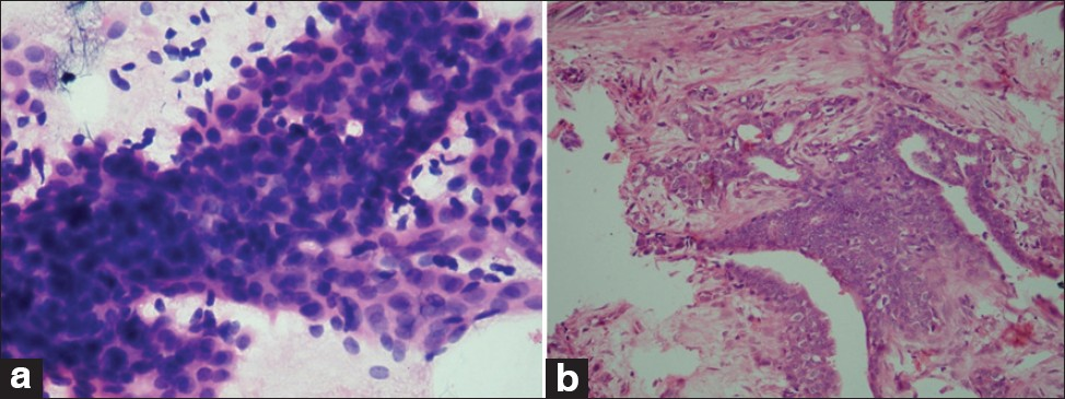 Figure 3: (a) Proliferative breast disease with atypia (PBD with atypia) (MMSI-15). Smear shows sheets of ductal epithelial cells with moderate degree of cellular pleomorphism, nuclear overlapping and occasional prominent nucleoli (H and E, �0). (b) The corresponding histopathology (H and E, �0)