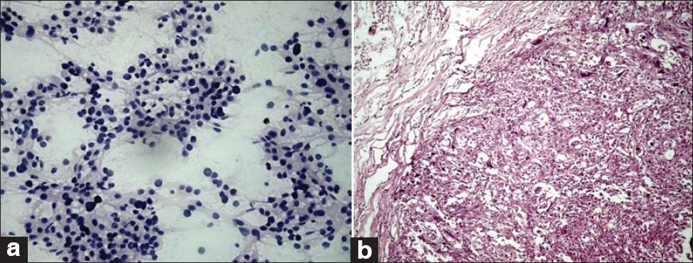 Figure 4: (a) Sheets of highly pleomorphic cluster of ductal epithelial cells with single tumor cells in the background, absence of myoepithelial cells (H and E, ×400). (b) The corresponding histopathology (H and E, ×200)