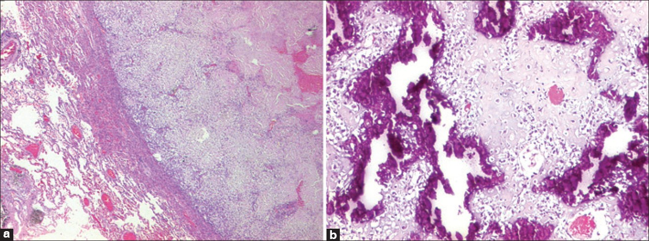 Figure 3: Chemotherapy-related changes in osteosarcoma, (a) Necrosis, (b) Dense sclerotic bone
