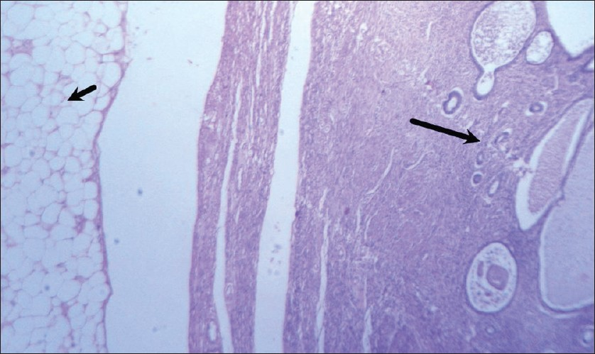 Figure 2: Microphotograph showing a thin atrophic endometrium (long arrow) with an intramural tumor composed of mature adipose tissue (short arrow), (H and E, ×400)