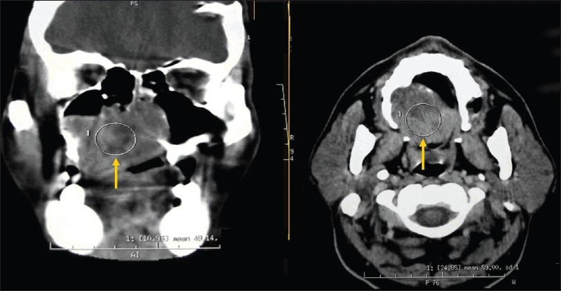 Figure 2: Computed tomography scan revealed an advanced lesion involving the right maxillary antrum, palate and nasal cavity with extensive bony destruction and extension into the surrounding structures