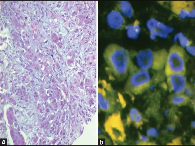 Figure 5: (a) Poor tissue morphology due to suboptimal fixation and processing (H and E, ×20). (b) The fluorescent in situ hybridization test revealed nuclear distortion and no appreciable signals