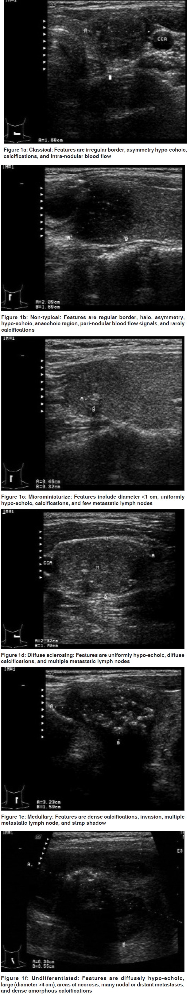 Evaluation Of Ultrasound Application In Diagnosis And Clinical