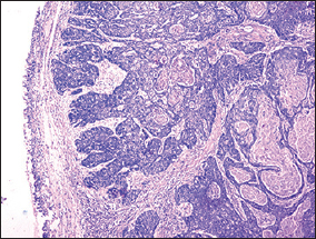 Figure  1: Microphotograph of basaloid squamous cell carcinoma showing nests of tumor cells  (H  and  E, ×40)