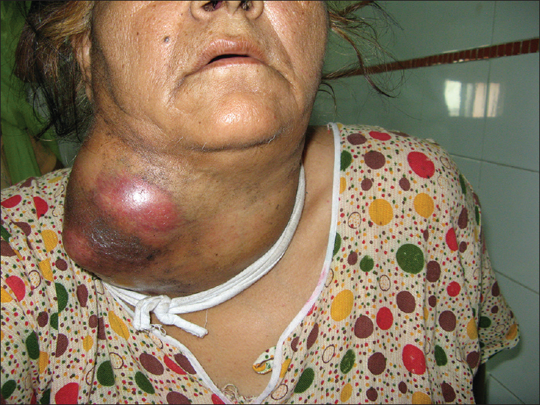 Figure  3: The second patient showing the large, inflamed and tender thyroid enlargement predominantly of the right side. The patient had stridor and underwent emergency tracheostomy