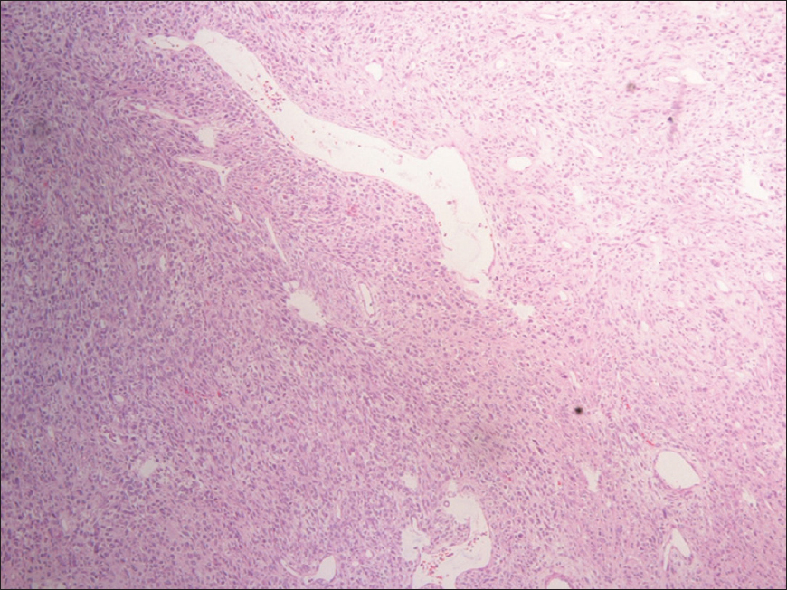 Pathology Outlines Rhabdomyosarcoma