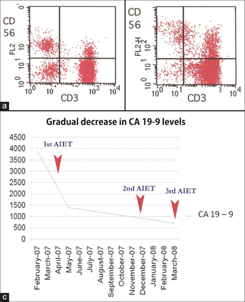 Figure 1: (a) Flow cytometry image of CD3 + lymphocytes from the peripheral blood before expansion and activation; (b) The same after in vitro expansion and activation; (c) The gradual decrease of CA 19-9 levels during the course of treatment