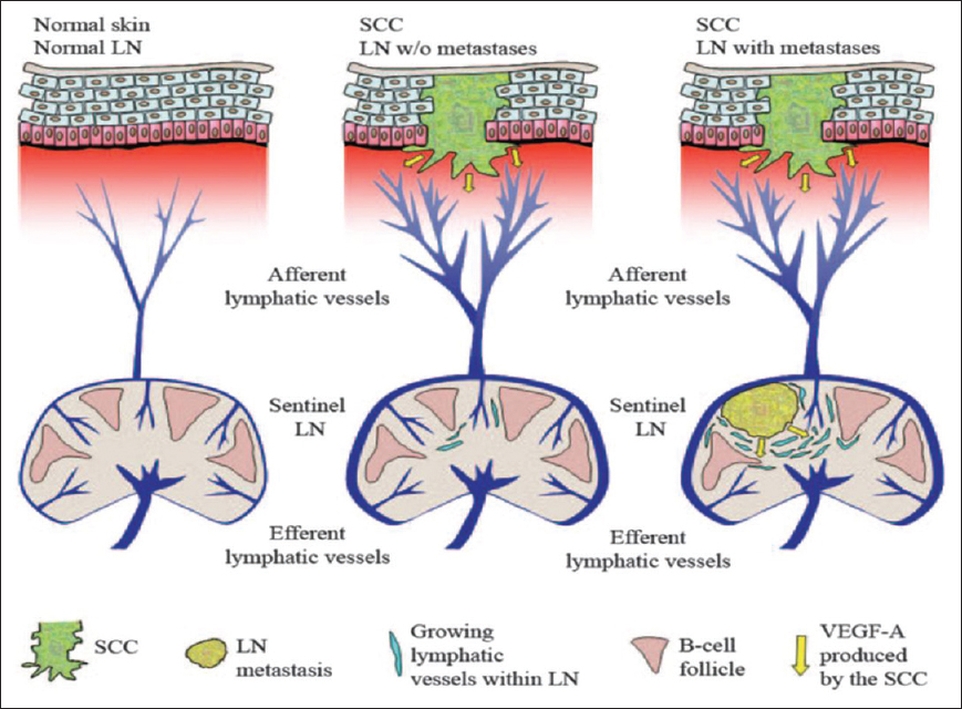 Lymph Node Metastasis A Bearing On Prognosis In Squamous Cell