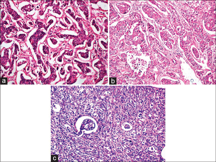 Figure 1: (a) Grade I IDC – Greater than 75% of tumor cells show tubule formation with minimal nuclear atypia and occasional mitoses (H and E, ×100); (b) Grade II IDC – Less than 75% of tumor cells are showing tubule formation with moderate nuclear atypia and 10-12 mitoses/10 HPF (H and E, ×100); (c) Grade III IDC – Tumor cells are arranged in sheets with less than 10% cells showing tubule formation along with marked nuclear atypia and frequent mitoses (>/10HPF) (H and E, ×100)