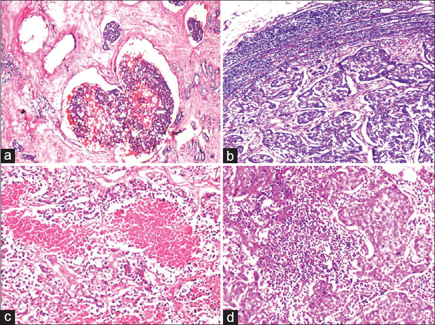 Figure 2: (a) Lymphovascular invasion – The tumor cells are seen invading a blood vessel. Also seen are RBCs within the vessel (H and E, ×40); (b) Axillary lymphnode metastasis – Section of a lymph node showing tumor deposit almost completely replacing the lymph node. Peripheral rim of normal lymphoid tissue is seen along with the capsule (H and E, ×40); (c) Tumor necrosis – Section shows IDC with wide areas of necrosis (H and E, ×100); (d) Stromal reaction - Section shows IDC with stroma showing extensive infiltration by lymphocytes (H and E, ×100)