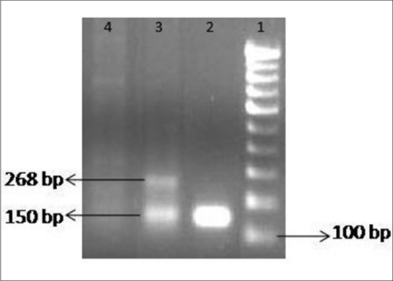 Figure 1: Representative agarose gel image showing polymerase chain reaction assay for human papillomavirus GP5+/GP6+. Lane 1: 100 bp ladder, Lane 2: Human papillomavirus positive control (with GP5+/GP6+ primer set), Lane 3: Human papillomavirus positive control (with GP5+/GP6+ primer set + internal control), Lane 4: Oral squamous cell carcinoma sample
