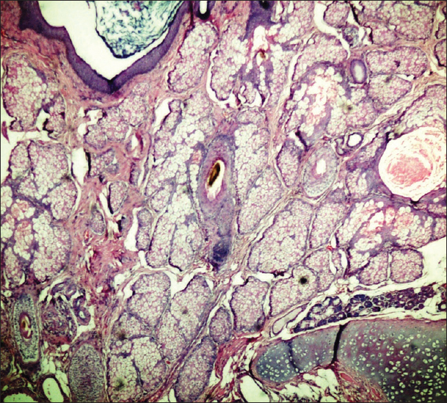 Figure 2: Photomicrograph showing skin, adnexal structures (sebaceous glands, hair follicles) and mature cartilage (H and E, ×100)