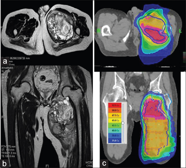 Figure 2: (a) Magnetic resonance imaging coronal figure of Patient 8 before surgery. (b) Magnetic resonance imaging axial figure before surgery. (c) Delineation of the target volume for the postoperative treatment of sarcoma with extension to the sciatic nerve (Patient 8)