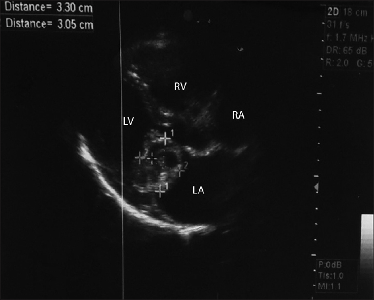Figure 1: Echocardiographic panel showing tumor size and location