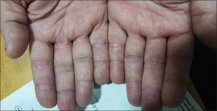 Figure 3: Hand-foot skin reaction