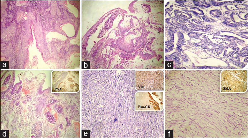 Figure 1: (a) Squamous cell carcinoma, (b) urachal mucinous adenocarcinoma, (c) secondary colonic adenocarcinoma, (d) secondary prostatic adenocarcinoma (inset: Prostate-specific antigen positive), (e) leiomyosarcoma (inset: Vimentin positive and Pan-cytokeratin negative), (f) myxoid leiomyosarcoma (Inset: Smooth muscle actin positive)