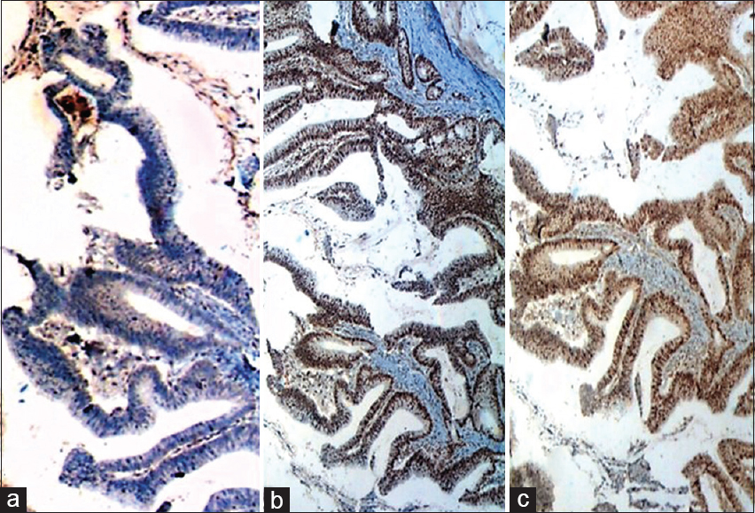 Figure 2: Immunohistochemistry. This case of microsatellite instable colorectal cancer displayed absence of nuclear staining in the tumor cells with MLH1 (a; ×100) compared to positive nuclear staining in the tumor cells with MSH2 (b; ×50) and MSH6 (c; ×100)